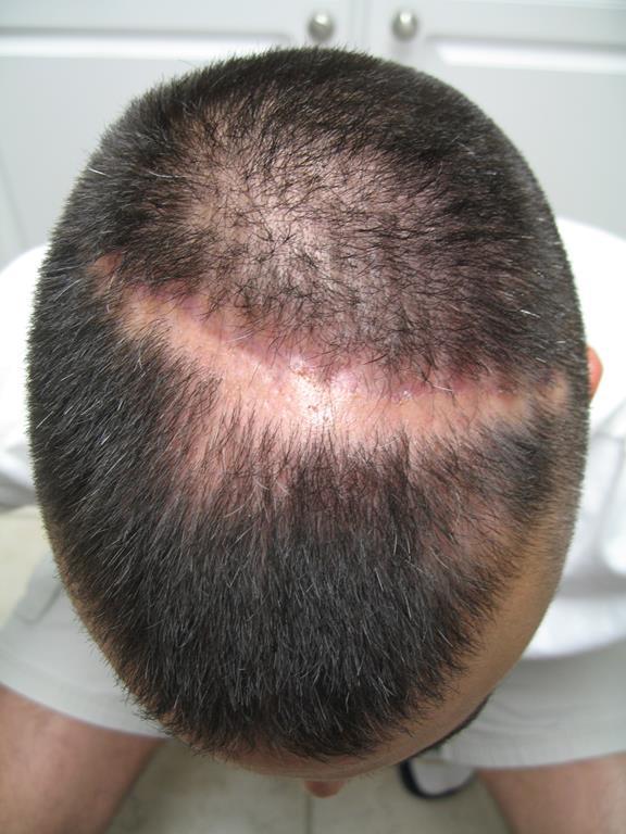 exemplo de alopecia areata