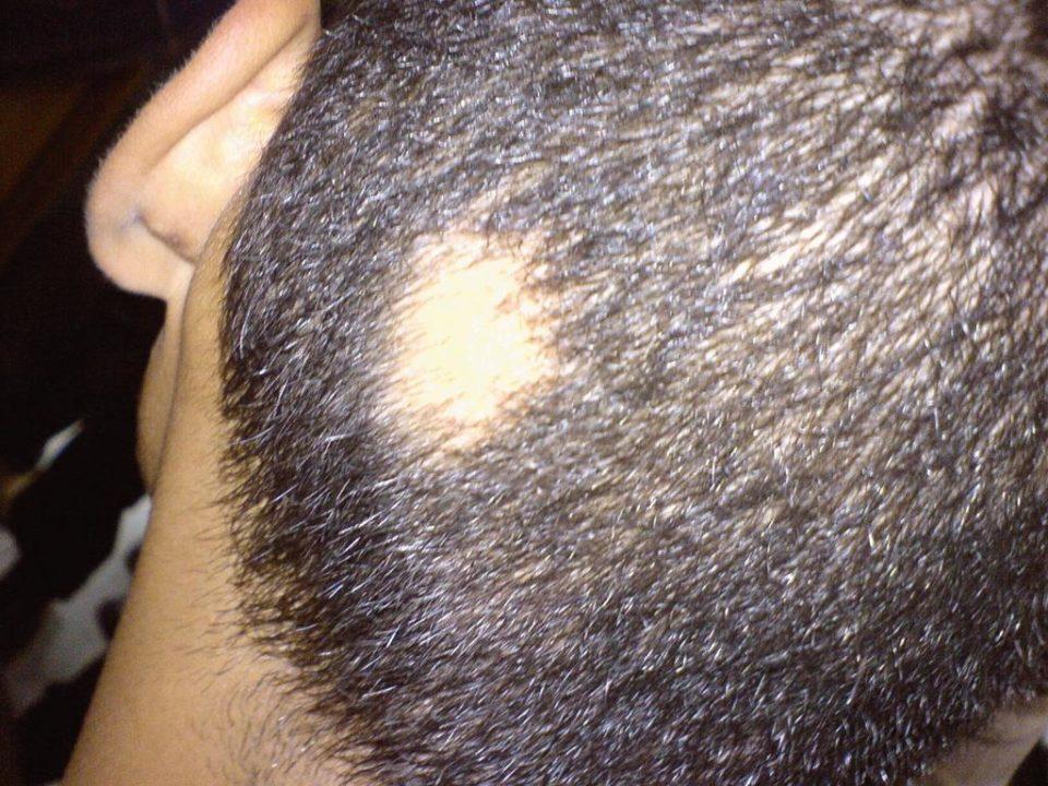 a alopecia areata é uma condição em que o indivíduo perde os fios de uma determinada parte da cabeça ou de todo o couro cabeludo
