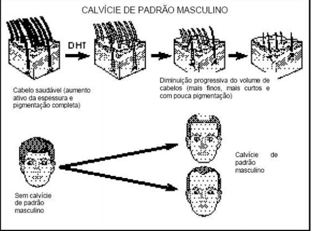 De acordo com a bula de Finasterida, a calvície é uma queda progressiva no cabelo. Uma condição comum nos homens na qual experimentam a diminuição do volume dos fios.