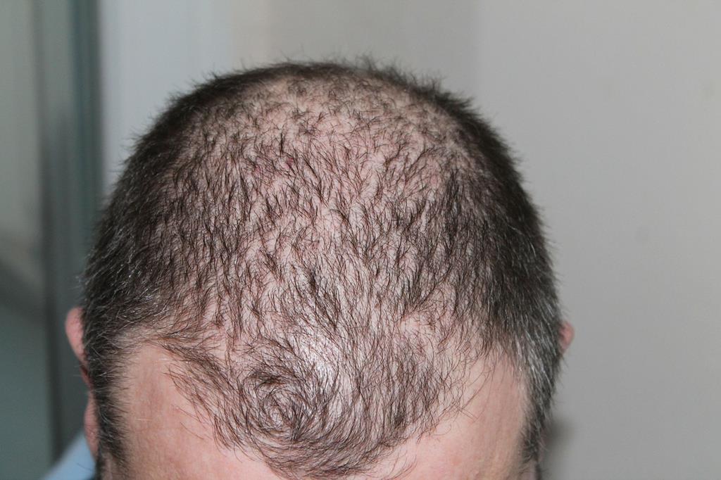 quais problemas hormonais causam queda de cabelo
