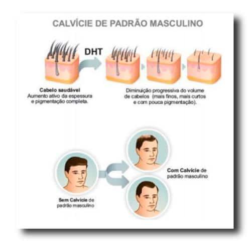 Imagem explicativa referente a como a calvície se manifesta no couro cabeludo.