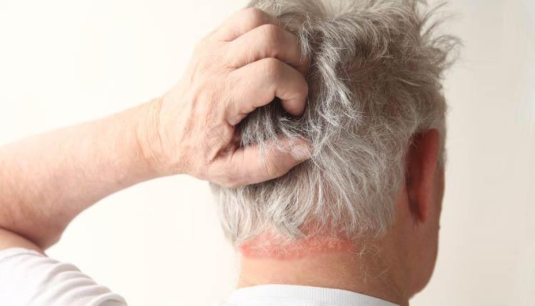 o cetoconazol age diminuindo as descamações e sintomas como conceira, vermelhidão e ardência
