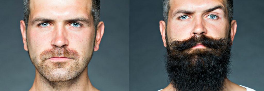 aloxidil na barba: antes e depois