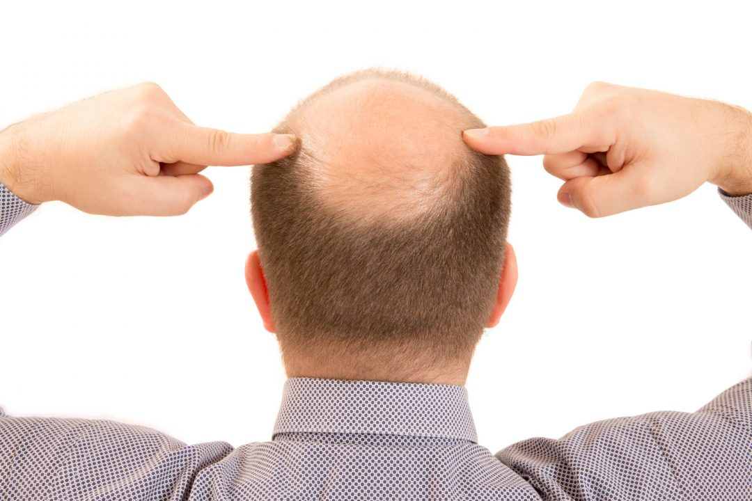 o aloxidil é um fármaco bastante receitado para homens carecas