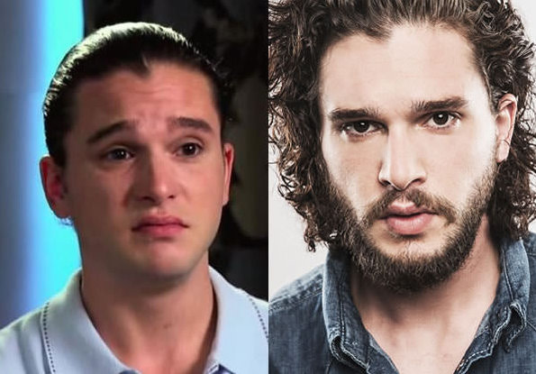 ator Kit Harington com e sem barba